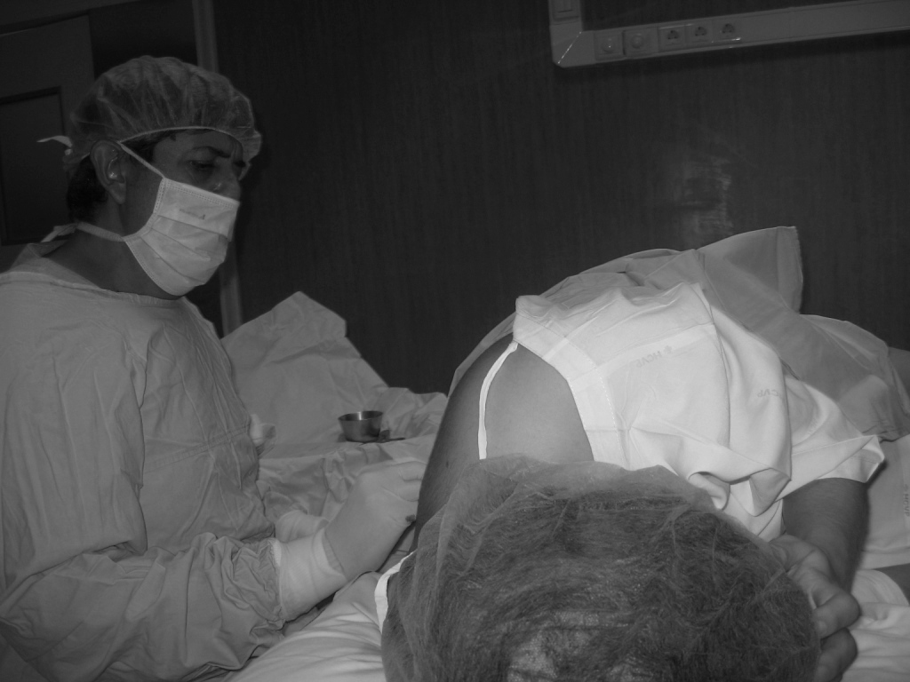 Após costas epidural nas dormência
